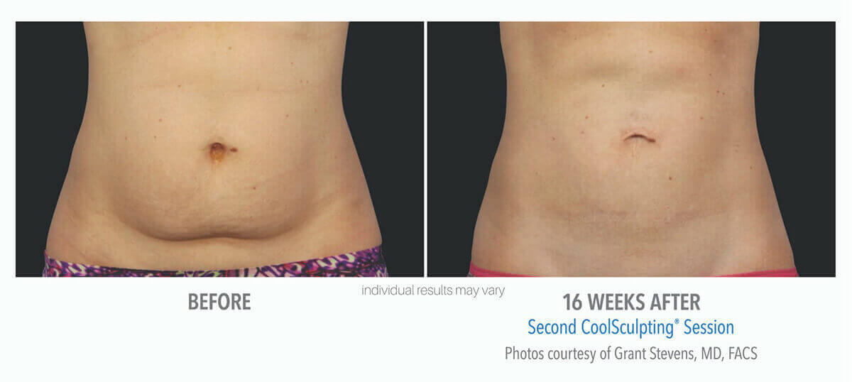 coolsculpting_before_and_after_cool-sculpting_1-1