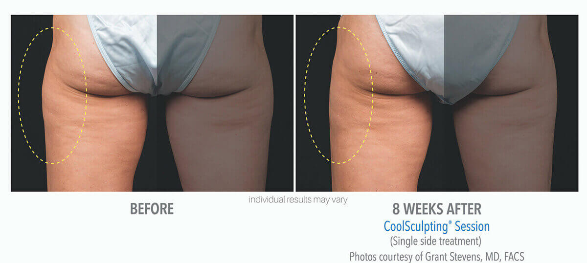 coolsculpting_before_and_after_cool-sculpting_3-1