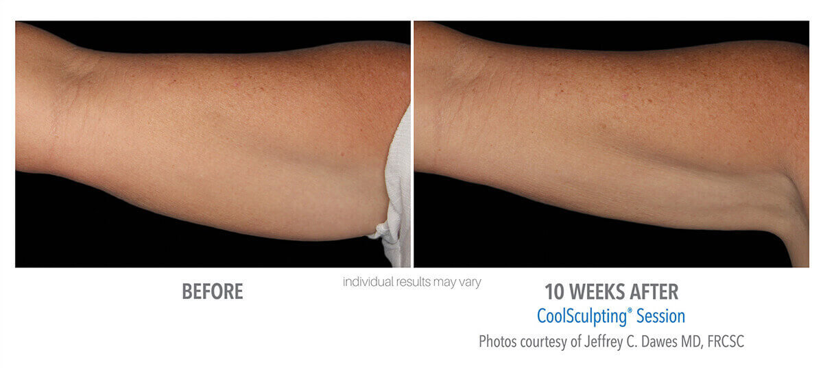 coolsculpting_before_and_after_cool-sculpting_7-1